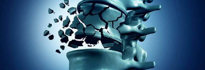 Vertebroplastia: cirurgia para fraturas na coluna causadas por osteoporose