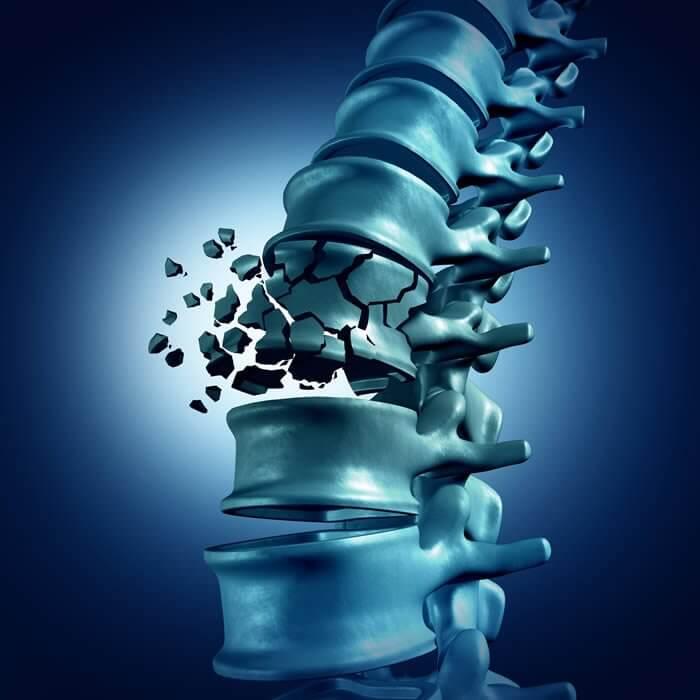 vertebrata - fratura coluna