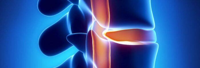 Sintomas e tratamentos para hérnia de disco