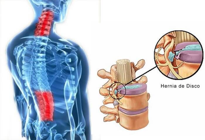 vertebrata - hernia de disco dor nas costas