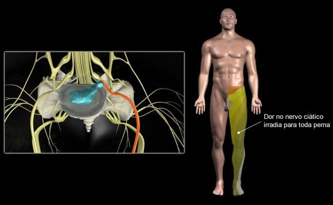dor no nervo ciatico