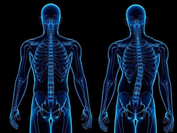 causas da escoliose na coluna cervical escoliose na coluna lombar