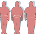 Qual a relação da dor nas costas com a obesidade?