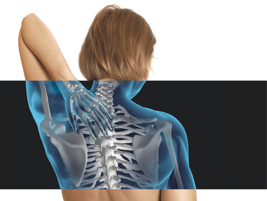 Osteoporose em mulheres