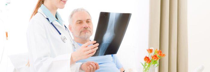 Homens brasileiros subestimam o risco de osteoporose, diz pesquisa