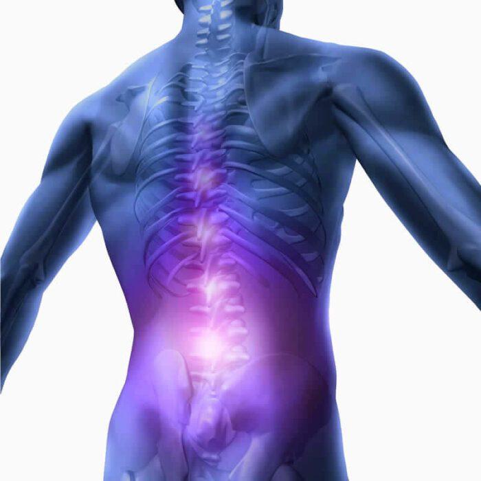 dor na coluna lombar ou lombalgia tratamento