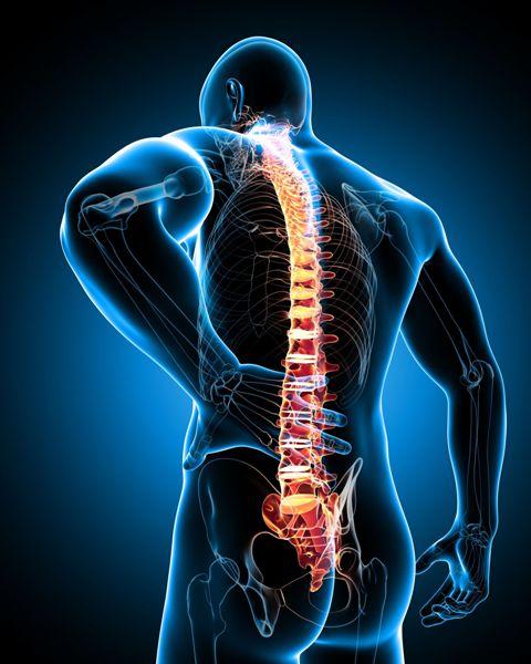 Dor ciática dor no nervo ciatico - Vertebrata