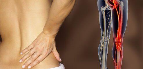 Como tratar as dores no nervo ciático