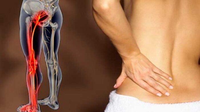 vertebrata - inflamacao nervo ciatico