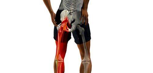 Como prevenir a dor no nervo ciático