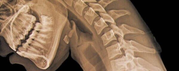 Cervicalgia: saiba quais são os primeiros sinais e como tratar a dor no pescoço