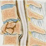 Osteoporose pode causar fratura na coluna. Saiba como prevenir!