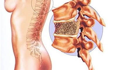 Causas da Osteoporose