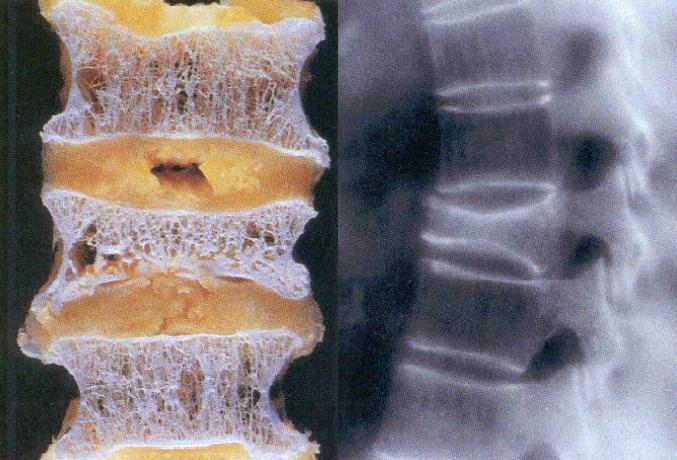 ossos com osteoporose podem sofrer ratura na coluna