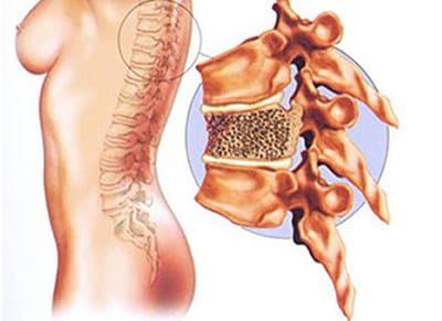 Osteoporose fratura na coluna vertebral