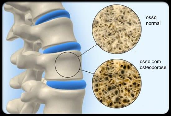 diferença entre osso com osteoporose e osso normal