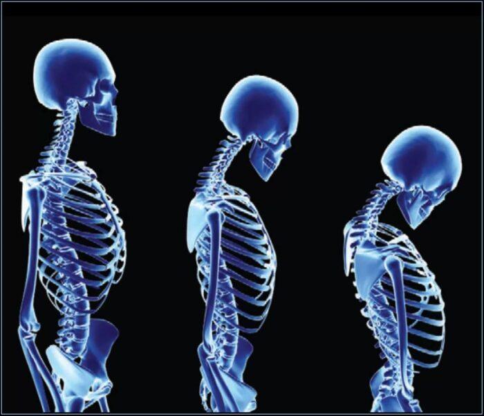 Artrite na coluna vertebral