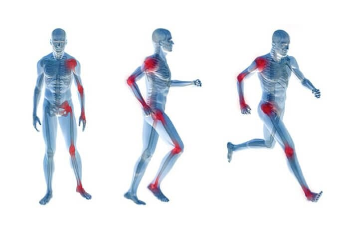 osteoartrite nas articulaçoes