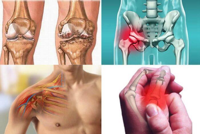tratamento artrose nas articulacoes artrose tem cura