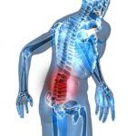 Espondiloartrose anquilosante na coluna pode ser incapacitante