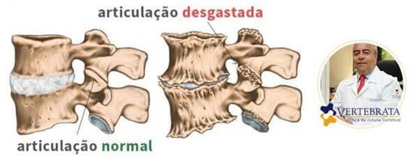 Médico especialista em artrose indica principais tratamentos