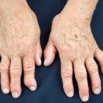 Artrite psoriática: psoríase pode desencadear problemas nas articulações