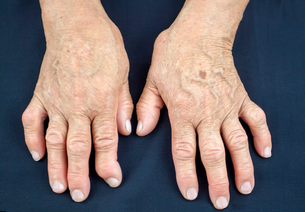 Artrite-psoriática