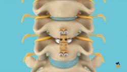 Hernia Discal Cervical (Artrodese)