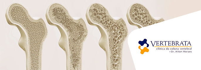 Como a cifoplastia pode restaurar fraturas na coluna vertebral