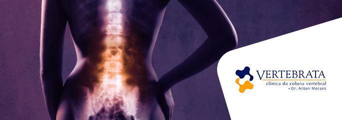 Mitos e verdades sobre a coluna vertebral